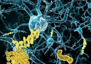 Fracasa nuevo tratamiento contra Alzheimer