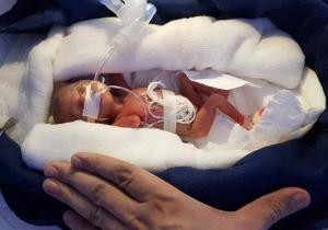 """Manushi: la """"bebé milagro"""" de 400 gramos"""