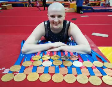 La gimnasta británica alérgica a sus lágrimas y al crecimiento del cabello