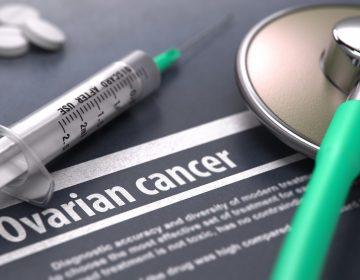 Los factores de riesgo del cáncer de ovario podrían incluir los genes de tu padre