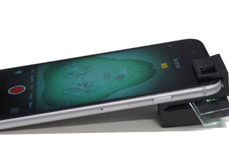 Este microscopio para smartphone podría prevenir enfermedades en los países en desarrollo