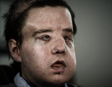 ¿Quién es Jérôme Hamon? El primer hombre del mundo en recibir dos trasplantes de cara