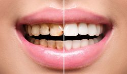 Un nuevo tratamiento dental podría curar las caries sin necesidad…