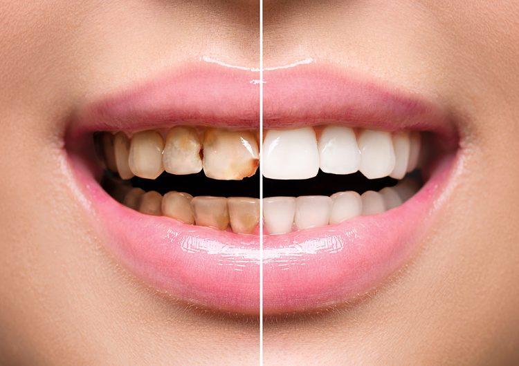 Un nuevo tratamiento dental podría curar las caries sin necesidad de empastes