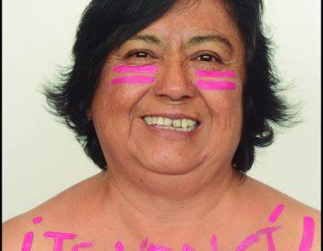 Mi lucha es rosa: cómo la detección a tiempo ayuda a curar el cáncer de mama