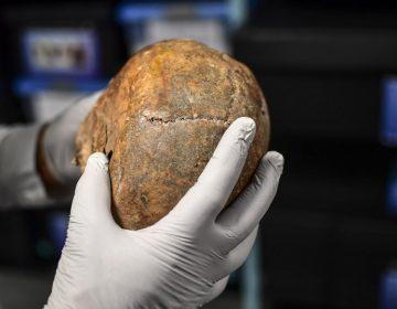 Por qué eran tan avanzadas las cirugías craneales de la antigua civilización inca