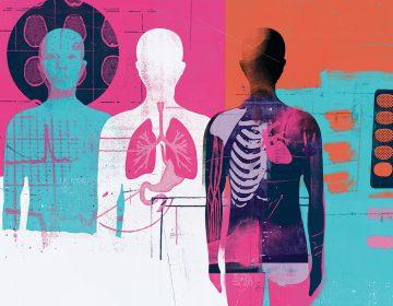 Cómo ayudan a la donación de órganos las muertes por sobredosis