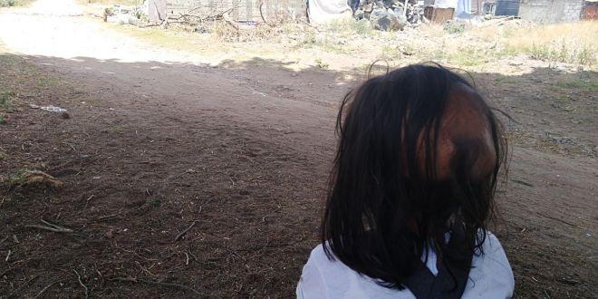 En medio de la pobreza, menor de Tulancingo lucha contra un tumor cerebral