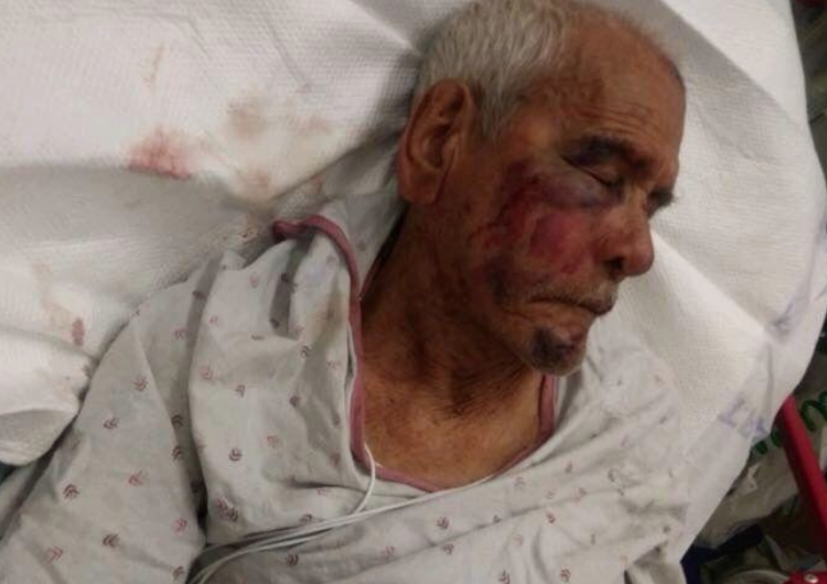 Acusan de intento de asesinato a mujer que atacó a un mexicano de 91 años en EE. UU.