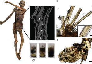 """¿Cuál fue el festín que """"mató"""" a Ötzi el hombre de hielo hace más de 5000 años?"""