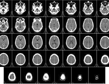 Donan cerebro en Aguascalientes; se investigará para detección oportuna de Alzheimer