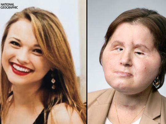 Katie pasó de un intento de suicidio a ser la mujer más joven en recibir un trasplante de cara
