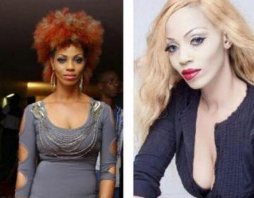 Africanas quieren ser blancas: la nueva moda que usa métodos ilegales y riesgosos