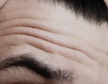 Arrugas en la frente: indicador temprano de envejecimiento vascular