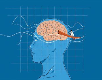 La estimulación magnética transcraneal, una nueva esperanza contra el TDAH