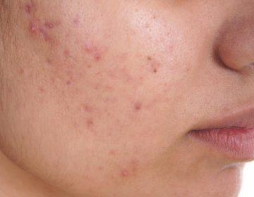 El hallazgo científico que podría conducir a una vacuna contra el acné