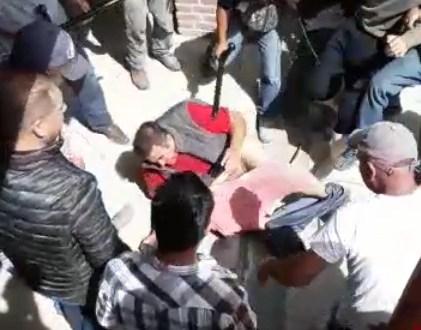 En coma, dos de los agredidos por turba en Metepec
