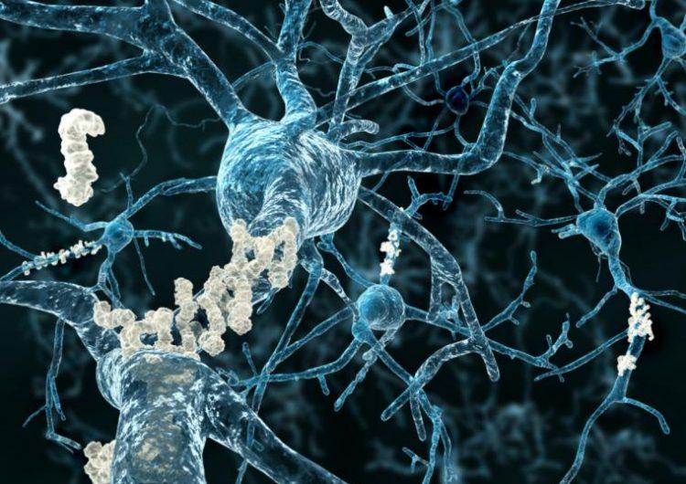 """Las células """"zombie"""" del cerebro podrían ser clave para medicamentos contra el Alzheimer"""