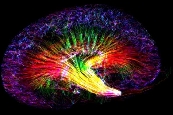 ¿La mejor imagen del año en investigación científica? Un arcoíris renal de ratón