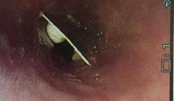 Mujer pasa 17 días con un envoltorio de pastillas atorado en la garganta