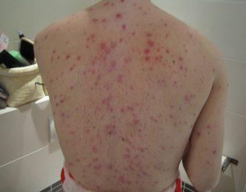Brote de varicela pone en alerta a Coahuila