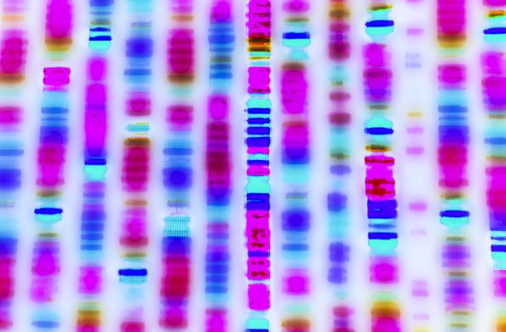 Descubren dos genes raros que propician el desarrollo de Alzheimer