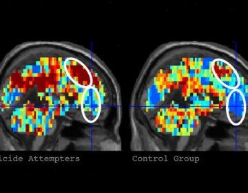 Suicidios de Parkland y Sandy Hook: Los escaneos cerebrales en la detección de ideaciones y riesgo de suicidio