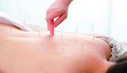 ¿Qué sí y qué no alivia la acupuntura?