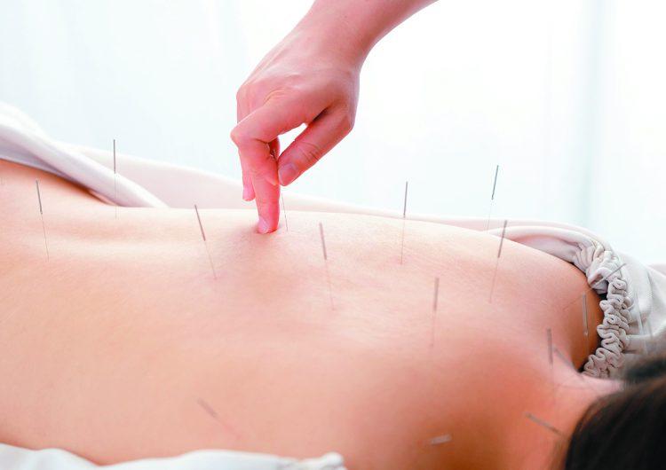La espalda de una mujer es tratada con agujas de acupuntura