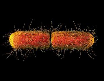 ¿Qué podemos hacer ante las bacterias inmunes a los antibióticos?