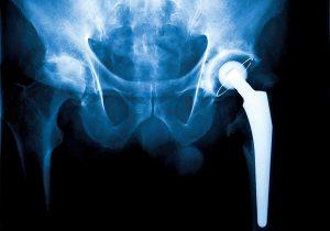 Células madre e impresión 3D: el futuro de los implantes esqueléticos