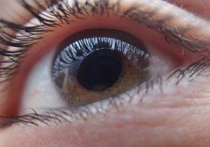 La foto compartida por un oftalmólogo que muestra por qué te debes quitar tus lentes de contacto antes de dormir