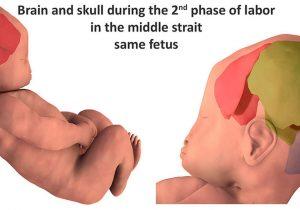 Imágenes 3D muestran cómo cambia el cráneo de un bebé durante la labor de parto