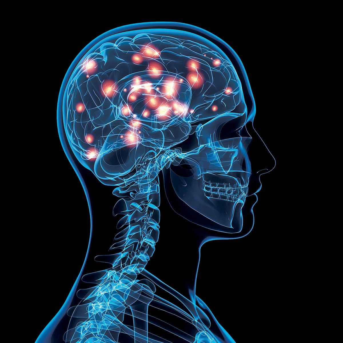En una imagen como de radiografía se ven partes del cerebro se que actian como con luz, seguramente al ser estimuladas por elementos externos.
