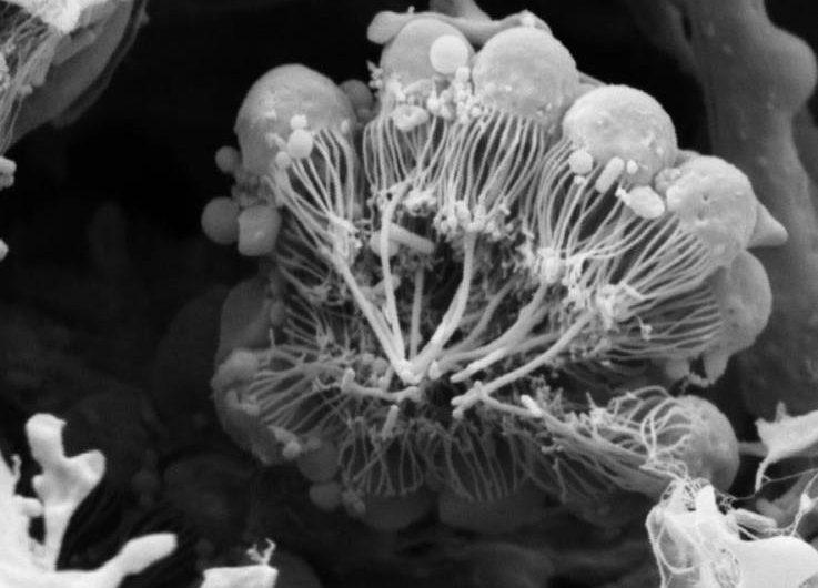 Científicos proponen la existencia de un nuevo ancestro para toda la vida animal