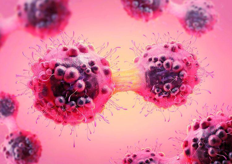Inteligencia artificial para descifrar el código del cáncer