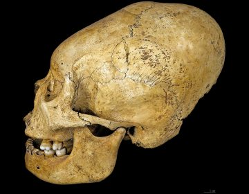 Descubren restos de cráneos deformados artificialmente en una fosa funeraria antigua