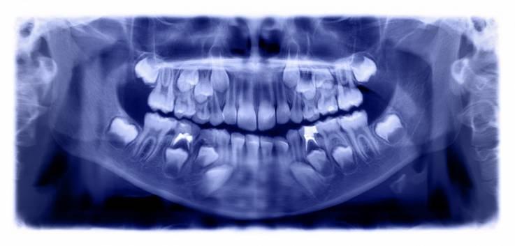 Médicos extraen 526 dientes de un niño de 7 años en la India