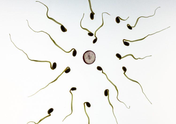 cromosomas-espermatozoides