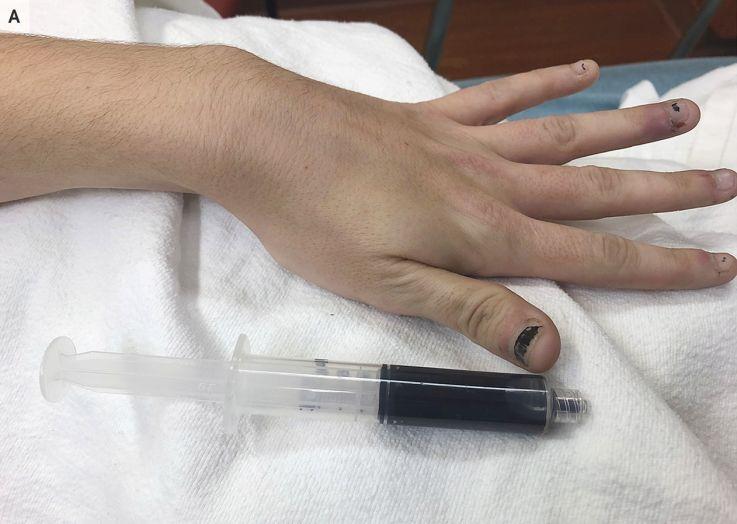 La sangre se una mujer se vuelve casi negra tras utilizar medicamento para el dolor de muelas