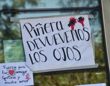 Estudiante universitario queda totalmente ciego por perdigones de antidisturbios en Chile