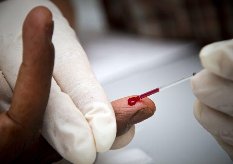 Identifican en laboratorio de Estados Unidos un nuevo subtipo de VIH