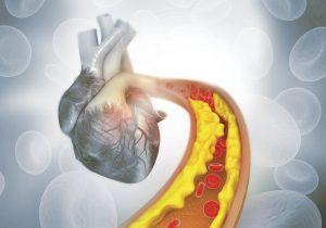 El primer evento cardiovascular puede ser el último… #ElColesterolNoAvisa