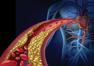 Enfermedad arterial coronaria no obstructiva: ¿Cómo diagnosticarla? ¿Cómo tratarla?