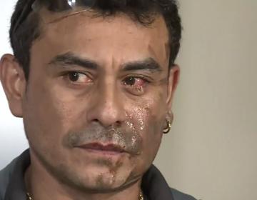 """""""Vuelve a tu país"""": Hispano en EU denuncia ataque racista con ácido"""
