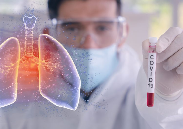 De tiempo y circunstancias | Habemus coronavirus COVID19