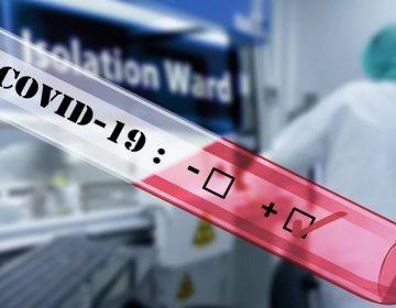 Se eleva a 15 cifra de casos positivos de coronavirus en Aguascalientes