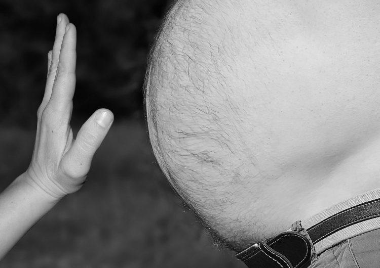 La obesidad es uno de los factores de riesgo más grandes por la COVID-19