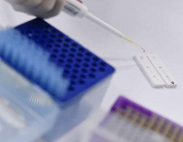 La universidad de Oxford prueba vacuna del coronavirus en humanos