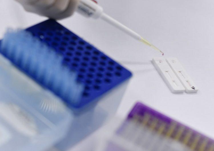 la-universidad-de-oxford-prueba-vacuna-del-coronavirus-en-humanos